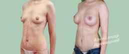 Увеличение груди и миниабдоминопластика — до и после — пластический хирург Древецкий
