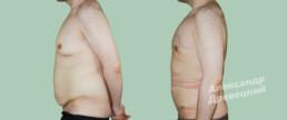 Устранение гинекомастии и абдоминопластика с устранением диастаза прямых мышц живота и пупочной грыжи — до и после — пластический хирург Древецкий