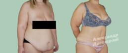 Абдоминопластика с устранением диастаза прямых мышц живота и пупочной грыжи — до и после — пластический хирург Древецкий