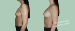 Липофилинг груди — до и после — пластический хирург Древецкий