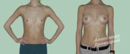Увеличение груди с имплантами — до и после — пластический хирург Древецкий