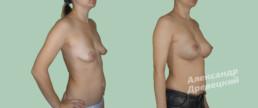 Подтяжка груди с имплантами — до и после — пластический хирург Древецкий
