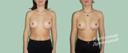 Коррекция ранее сделанной неудачной маммопластики — до и после — пластический хирург Древецкий