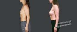 Увеличение груди + липофилинг — до и после — пластический хирург Древецкий