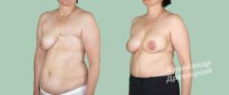 Реконструкция груди после мастэктомии — до и после — пластический хирург Древецкий
