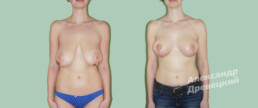 Уменьшение груди — до и после — пластический хирург Древецкий
