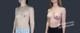 Увеличение груди с имплантами и липофилинг — до и после — пластический хирург Древецкий