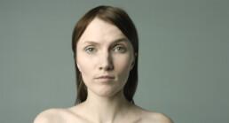 Подтяжка груди с имплантами – до и после – Александр Древецкий